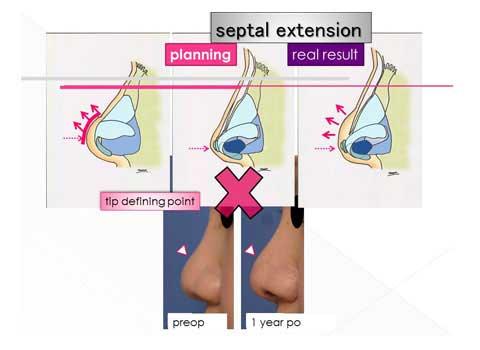 鼻尖形成術の問題点についての説明スライド