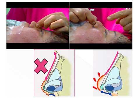 鼻尖形成術、症例写真での説明スライド