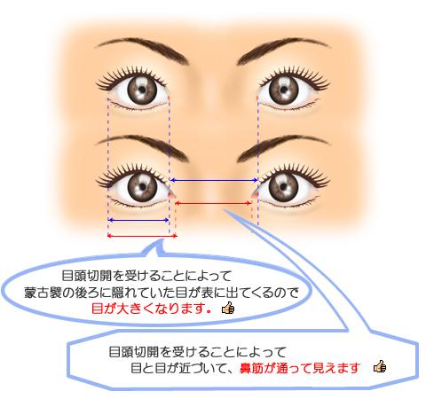 目頭切開でどこまで目が大きくなるのか