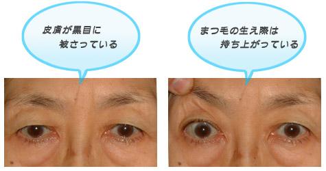 眼瞼下垂皮膚のたるみタイプ