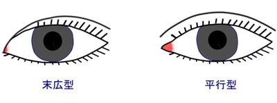 末広型と平行型の二重