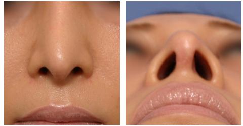 肋軟骨を使った鼻中隔延長(術後)