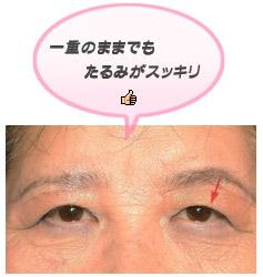 上眼瞼リフト