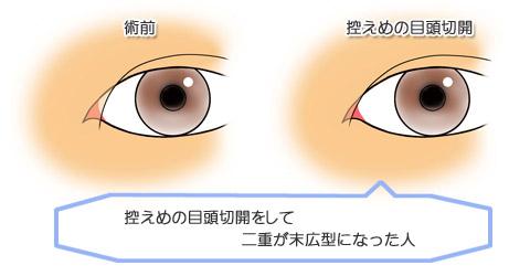 目頭切開:二重を広くする必要があります