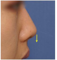 術後の形を見抜く観察眼