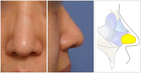 他院で鼻中隔延長術を受け、鼻尖を下方ではなく前方に延長された