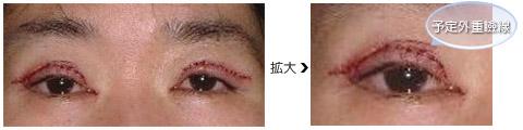 予定外重瞼線ができるタイミング