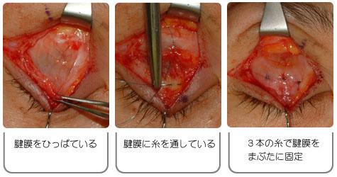 眼瞼下垂: 腱膜前転術の手術