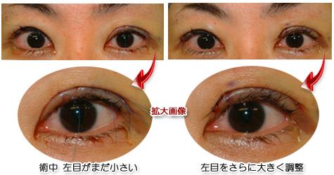 なぜ腱膜と瞼板を縫い合わせるのか