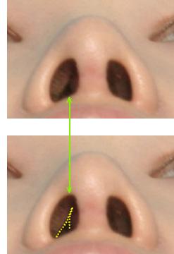 術後に見られる問題点「鼻づまり」