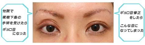 眼瞼下垂:やたらと開きすぎる目
