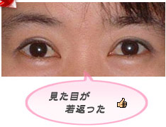 眼瞼下垂:見た目を若く見せる