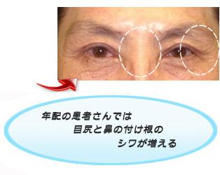 眼瞼下垂:鼻の付け根の横皺と目尻の皺が増えます