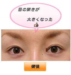 眼瞼下垂:目の開きが確実に大きく