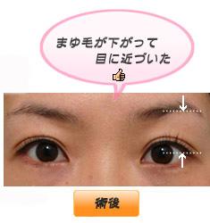 眼瞼下垂:まゆ毛は術前より下がって目に近づく