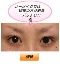 眼瞼下垂:アイメークと眼瞼下垂の手術の関係