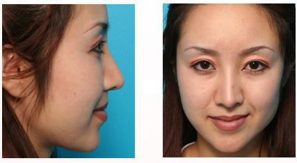 鼻先と鼻柱の中間部を延長