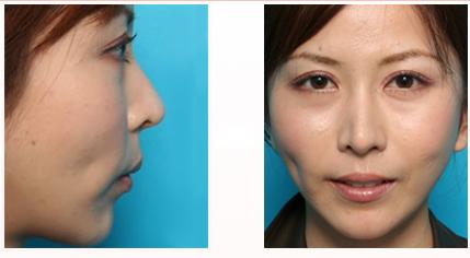 鼻の軟骨を用いて修正した症例