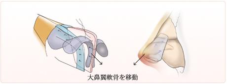 鼻中隔軟骨の先端に軟骨を縫いつけ、大鼻翼軟骨を移動