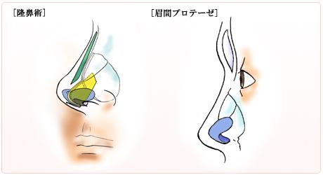 隆鼻術・眉間プロテーゼ