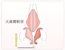 まっすぐな軟骨挿入