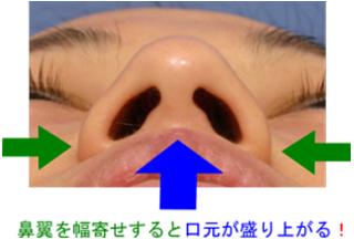 鼻翼縮小という手術について