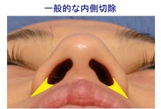 一般的な「鼻翼内側切除」