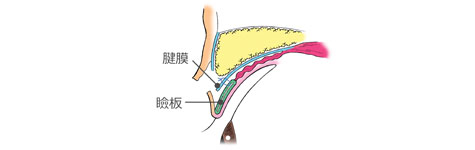 眼瞼下垂: 腱膜と瞼板