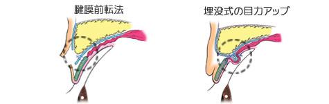 眼瞼下垂の治療