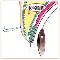 眼窩脂肪を切り取る脱脂術の効果