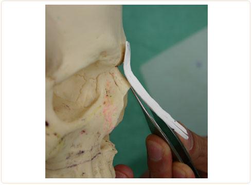 ゴアテックスプロテーゼ 鼻の骨にフィット