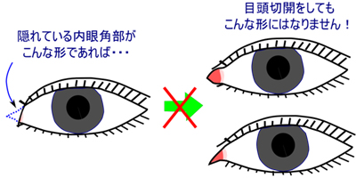 目頭部分の解剖