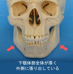 下顎体部が全体に外側に張り出し、角部はむしろ後内側へ回り込んでいるもの