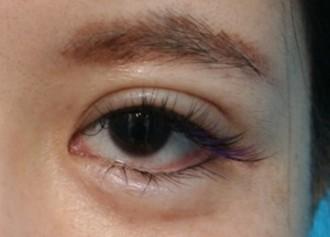 目尻靭帯移動