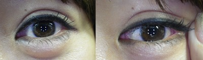 目尻切開の適応
