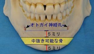 オトガイ神経