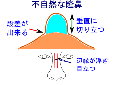 不自然な隆鼻術