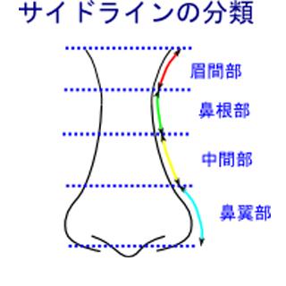 鼻のサイドラインの分類