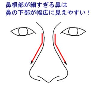 鼻根部が細すぎる鼻
