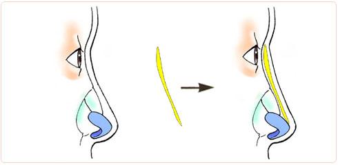 隆鼻の素材