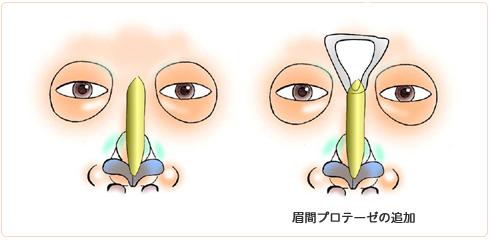 眉間プロテーゼが必要なわけ