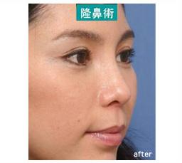 隆鼻術は鼻筋を長くする