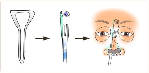 眉間プロテーゼにはなぜゴアテックスを使うのか?