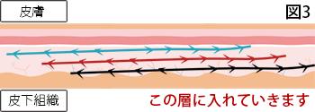 糸の挿入イメージ