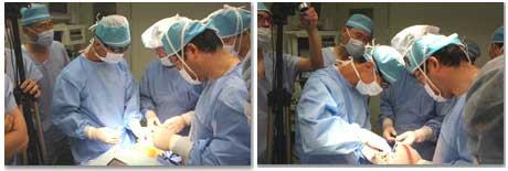 鼻中隔延長手術の説明