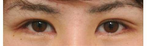 目頭切開と眼瞼下垂修正の術後