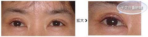 切開法の術後1週間、右目に予定外重瞼線ができています。