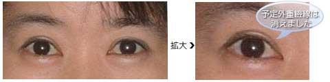 術後3週間、予定外重瞼線は消えました。