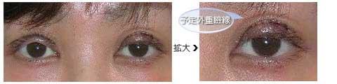 切開法の術後、左目に予定外重瞼線ができています。
