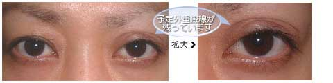 術後3ヵ月しても予定外重瞼線が残っています。